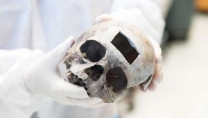As with this skull, a small section of bone was removed from the Austin skull for DNA testing.